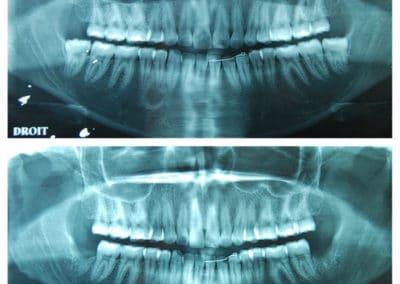 genioplastie reduction hauteur et avancee chirurgien paris menton radiographie 1