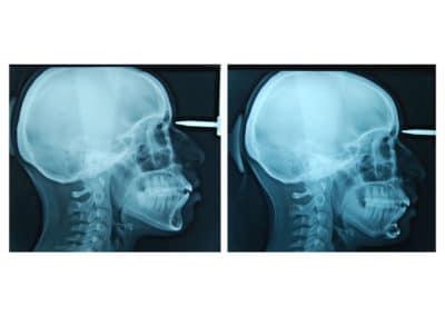 genioplastie reduction hauteur et avancee chirurgien paris menton tele profil radiographie 1