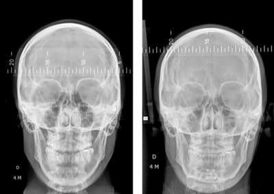reduced teleradiographie de face