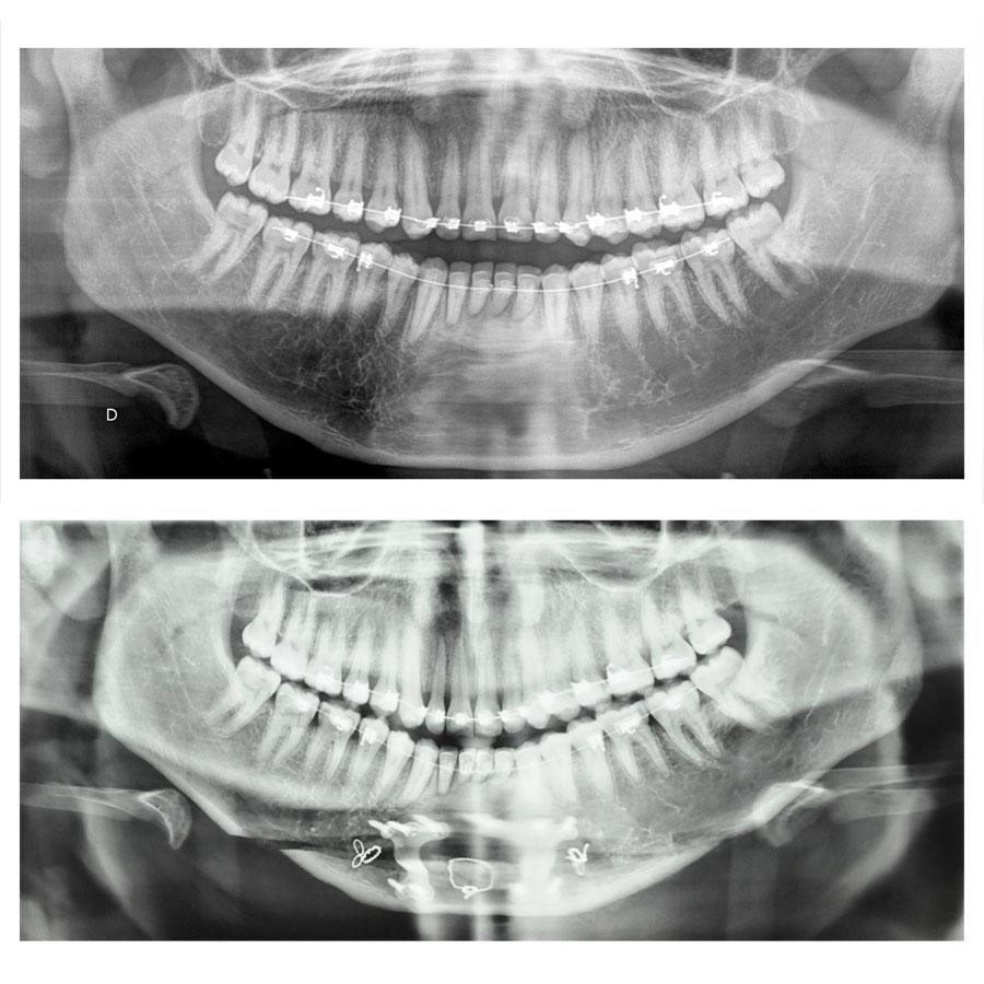 teleprofil genioplastie chirurgie du menton paris menton fuyant menton en retrait et chirurgie bimaxillaire avancement paris 3
